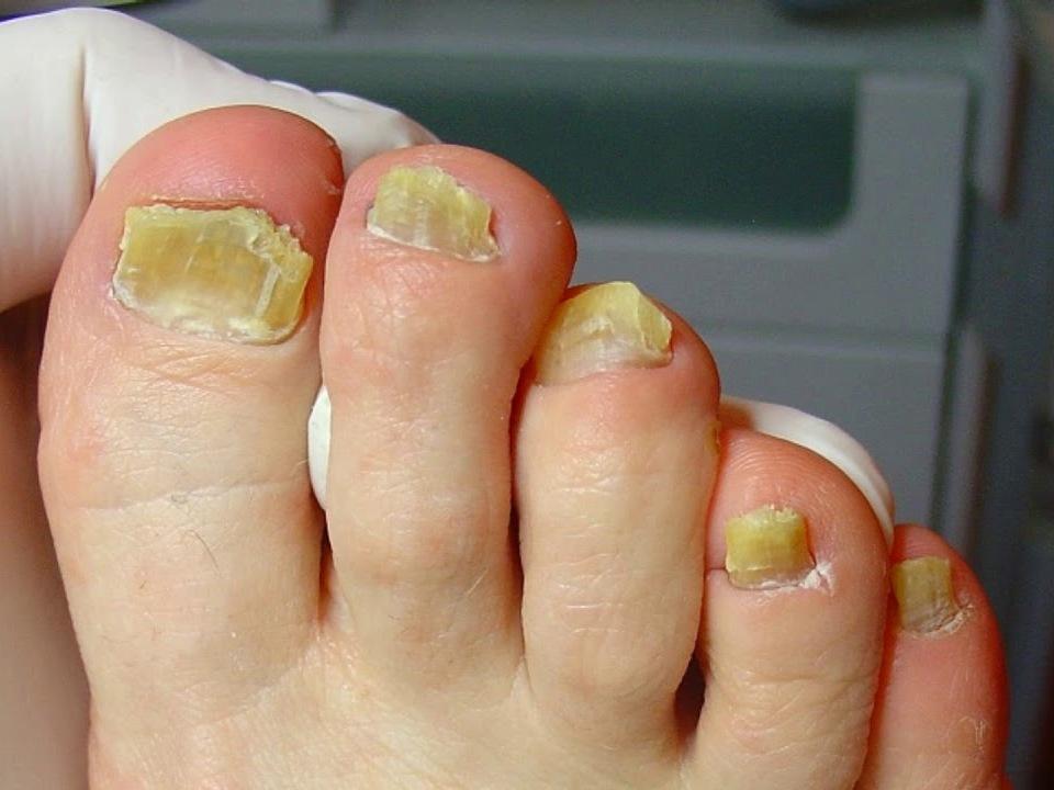 Dermatologinis onichomikozės gydymas